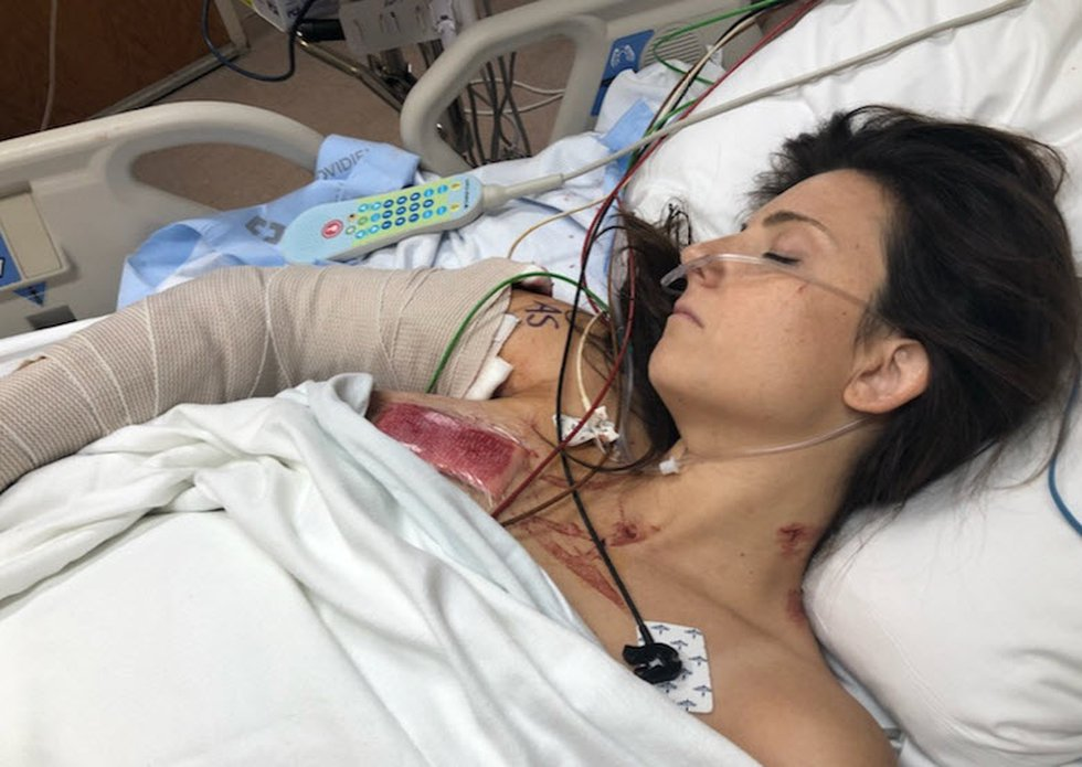 Whitney Austin recovering at University of Cincinnati Medical Center after the Sept. 6 shooting...